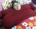 Egyptian woman Eman loses 40 kg in seven days, moves limbs